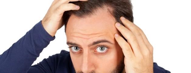 Oplever du pludseligt hårtab?